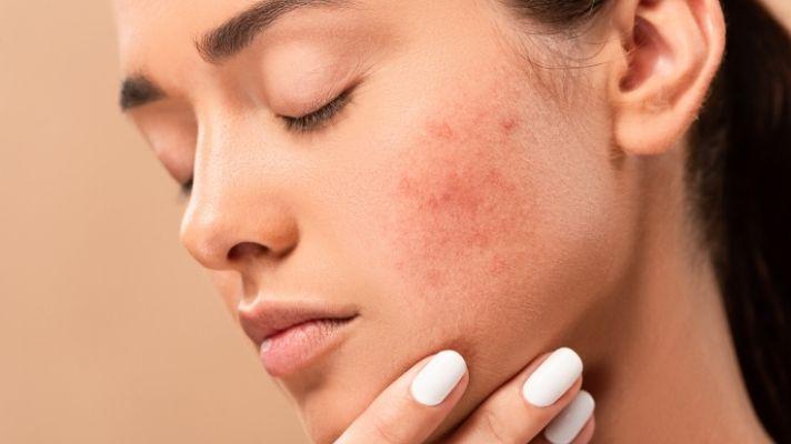 Dark Spots removal Home Remedies