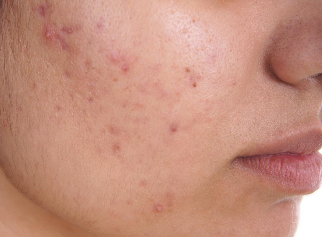 best acne removal cream