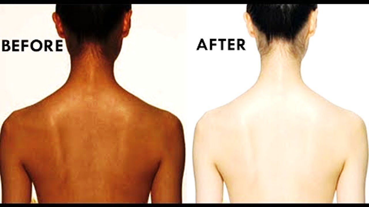 How to Remove Blackness of Back