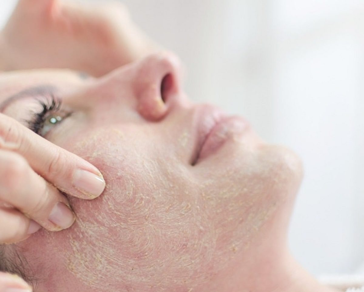 How to Remove Dead skin
