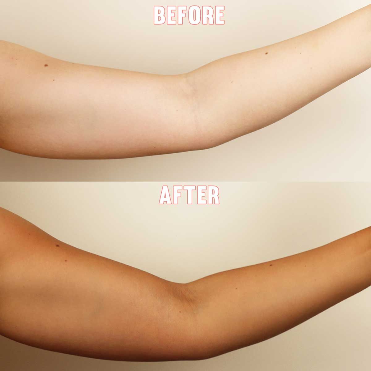 HOW TO REMOVE SKIN TANNING
